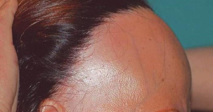 De la alopecia a las gallinas
