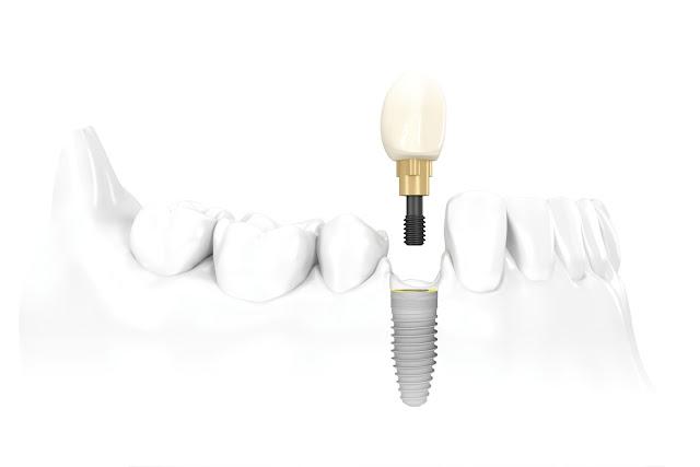 http://www.implantdentistindia.com/
