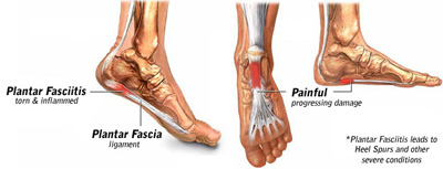 plantar fasciitis recovery time