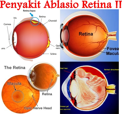 Obat Tradisional Ablasio Retina