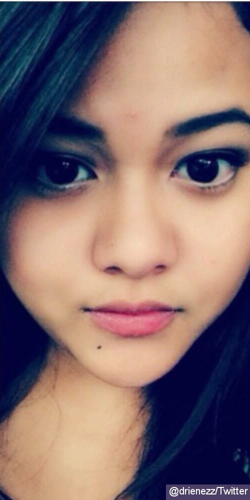 Aurel Diduga Operasi Plastik | Malang Emporium