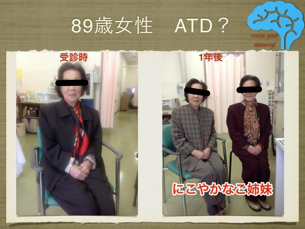 89歳女性 アルツハイマー型認知症?AGD?