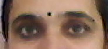 Digital Eye Strain or Computer Eye Syndrome-Causes-Symptoms-Remedies