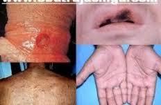 Obat Kencing Nanah Gonorrhea Selain AZITHROMYCIN 500 MG di Apotek Online