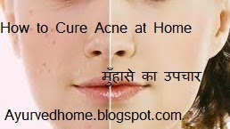 Acne Treatments at Home Naturally