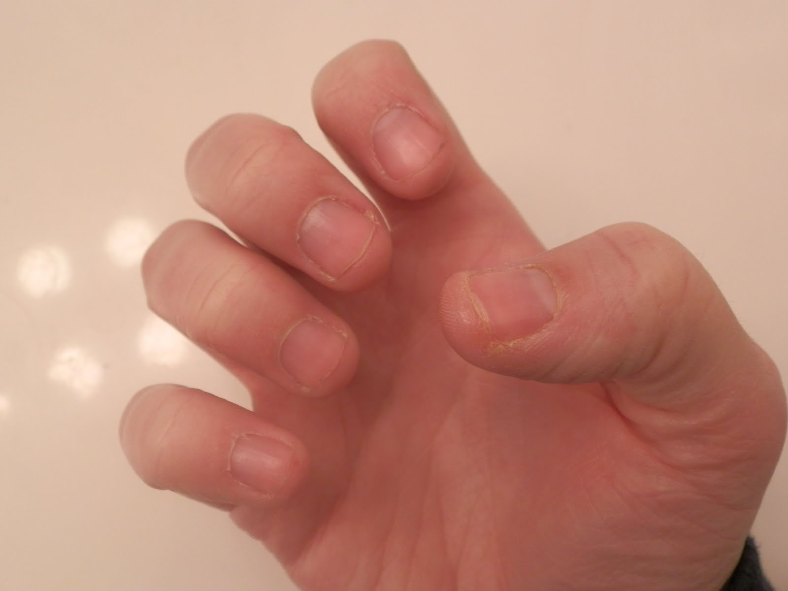 Stop the Biting! January 5, 2012   My Bite Sized Nails