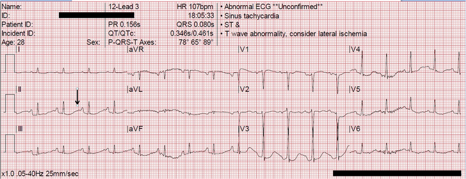 Prehospital Ventricular Fibrillation in a Young Woman  What is the    Ventricular Fibrillation Ecg