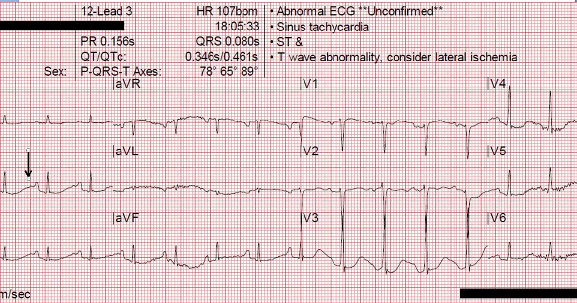 Dr. Smith's ECG Blog: Prehospital Ventricular Fibrillation ...
