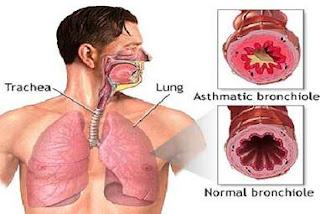 Reaksi Bronkus Pada Penyakit Asma