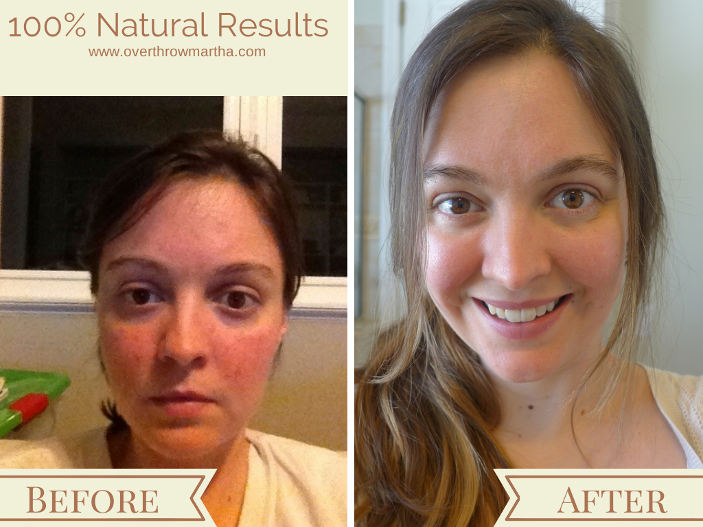 Results of nature (no chemical) skin care