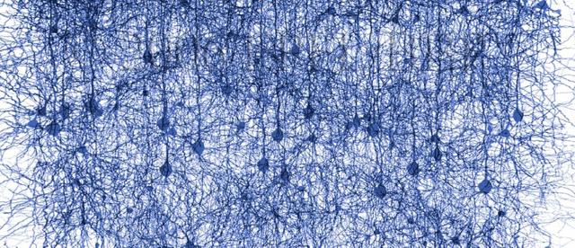 Artificial Neocortex