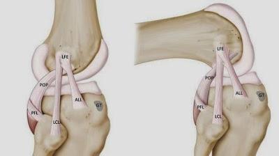 BieneSaludAlgoM Ligamento de Rodilla
