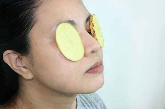 Potato Slices for Puffy Eyes - Beauty Tips For Indian Women