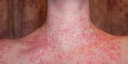 Tratamiento Contra la Psoriasis Guttata