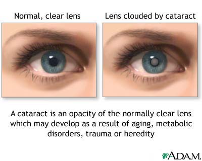 nursing care plan ncp for cataract nursing diagnosis for cataract