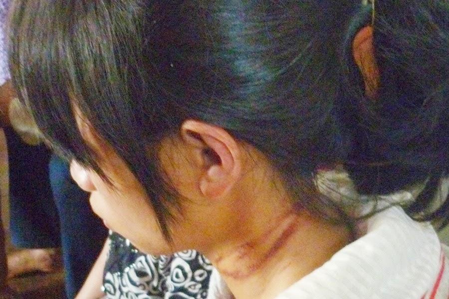 Gia Lai: Mẹ ruột nhẫn tâm hành hạ con đẻ