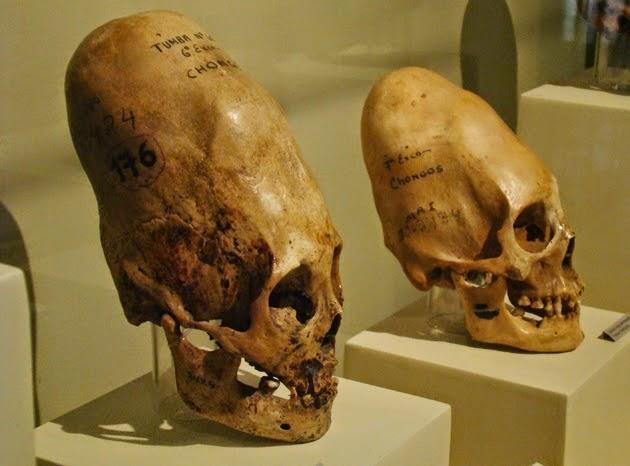 Homo Capensis: Η δολιχοκέφαλη φυλή που ελέγχει τον κόσμο; Αποκάλυψη της Karen Hyuds (video)