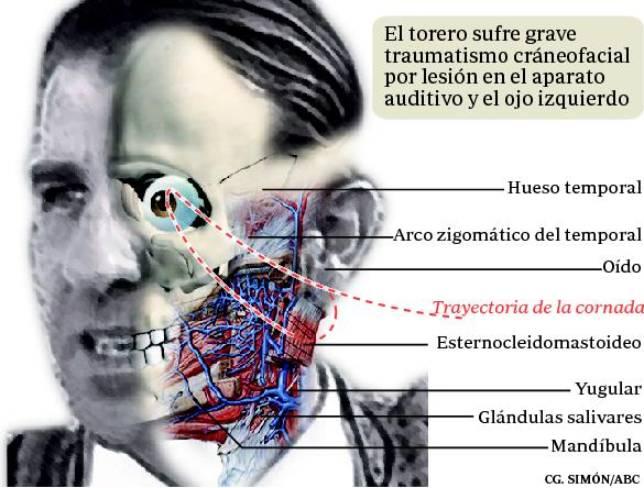 La fuerza f  237 sica y mental del torero jerezano desborda las    Juan Jose Padilla Cornada