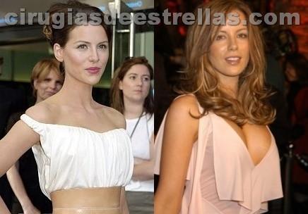 Kate Beckinsale y su cirugía plástica
