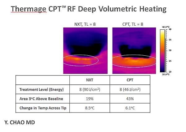 塑顏電波使用新一代CPT探頭,更適合深層脂肪加熱