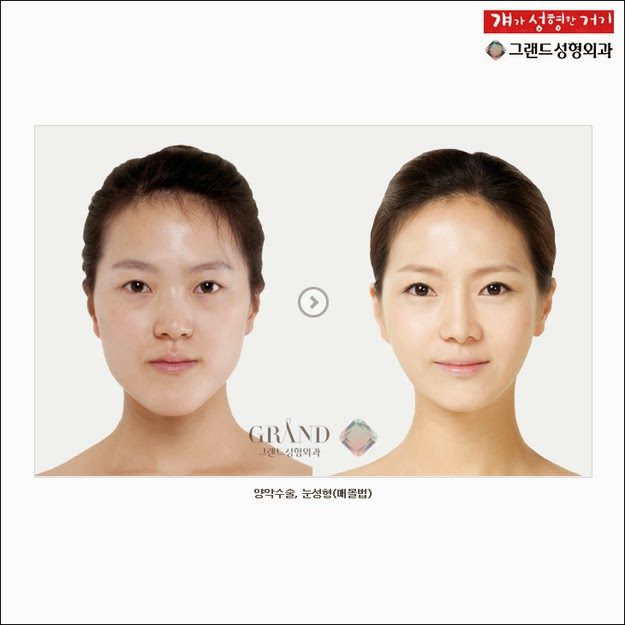 In a country with the highest rate of plastic surgery worldwide, anything you want to change is