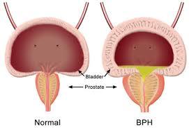 Cara Mengatasi Pembesaran Prostat