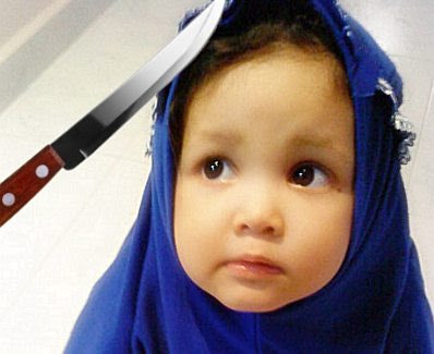 FGM: 'patient' and knife