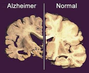 Bagaimana Cara Mengobati Penyakit Alzheimer