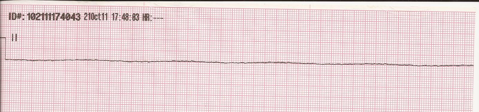 P Wave Asystole Float Nurse: Basic ECG...