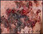 A acne flegmonosa forma ferimentos e abscessos na derme