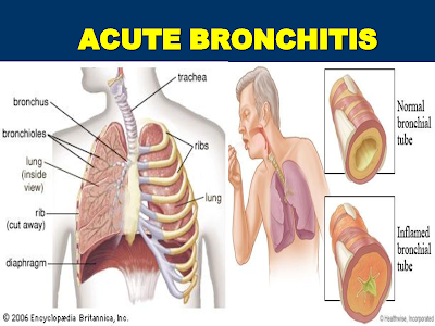 Acute Bronchitis In Adults And Children Causes, Symptoms, Diagnosis, Treatment, Prevention, Home Remedies