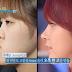 """LET美人 """"Operasi Kecantikan Gratis"""" Korean Beauty Before & After"""