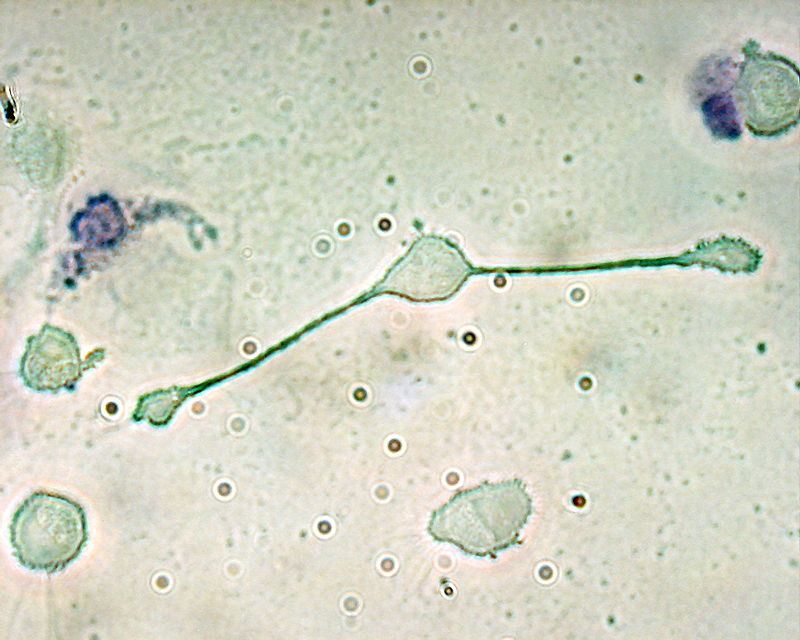 macrofago-accion-sindrome-hurler-celulas-madre
