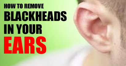 How to Get Rid of Blackheads in Ears