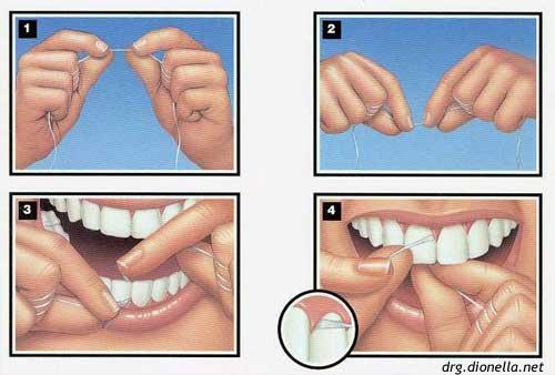 Penting Mari Kita Menganal Apa Itu Karang Gigi Dan Cara Mencegah