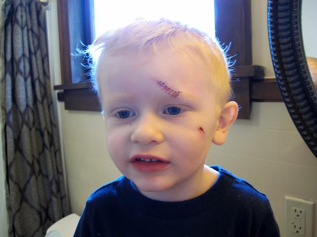 Porter's Stitches