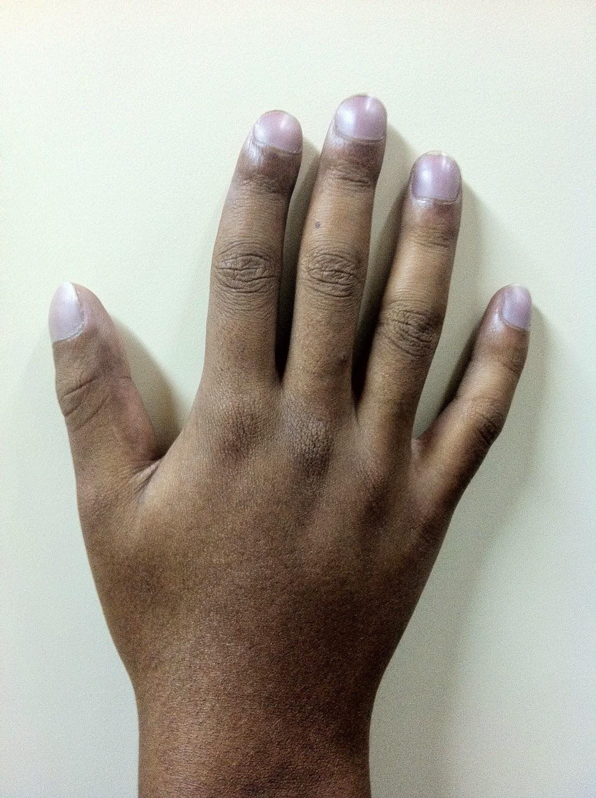 Dedos Hipocráticos, en palillo de tambor, acrocianosis, uñas en vidrio de reloj