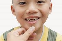 Dental implants Stamford CT