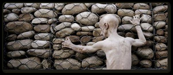 Progeria - boala rara care accelereaza simptomele batranetii