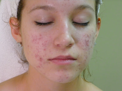 Treat acne when its origin is hormonal