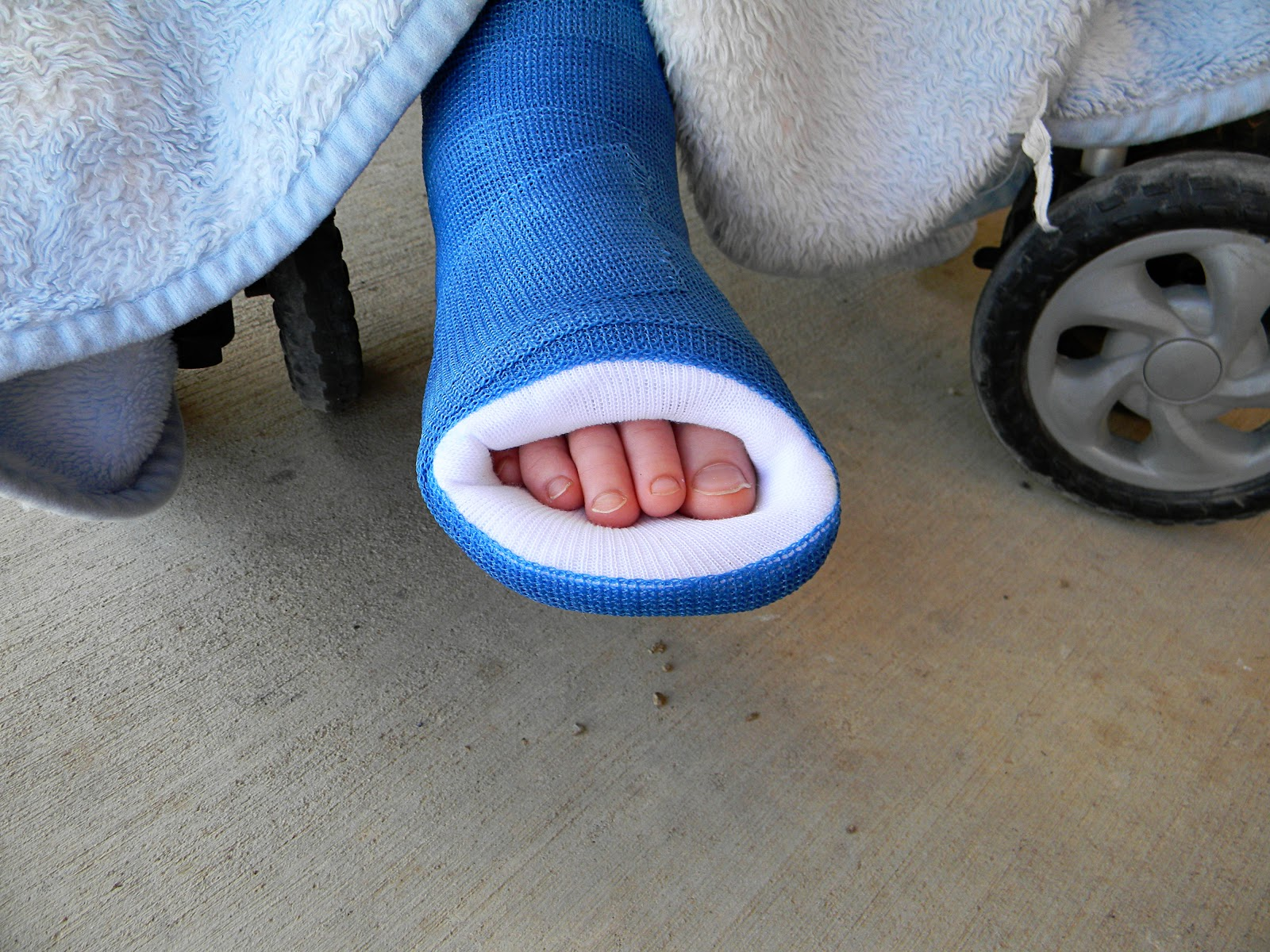 Eventually Scooter was walking around on his long cast without the walker.  You can see how the toe of his cast got a little beat up from that.