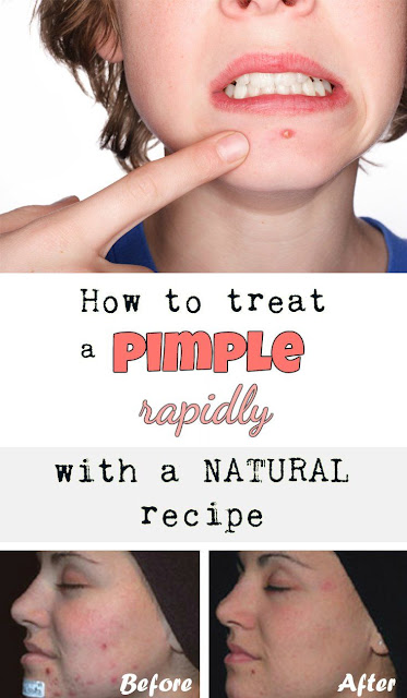 How to treat a pimple rapidly with a natural recipe