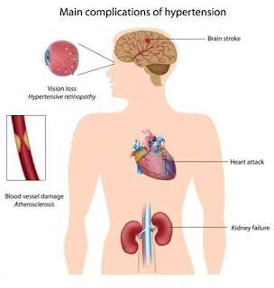 effects of high blood pressure over long periods of time or chronic hypertension