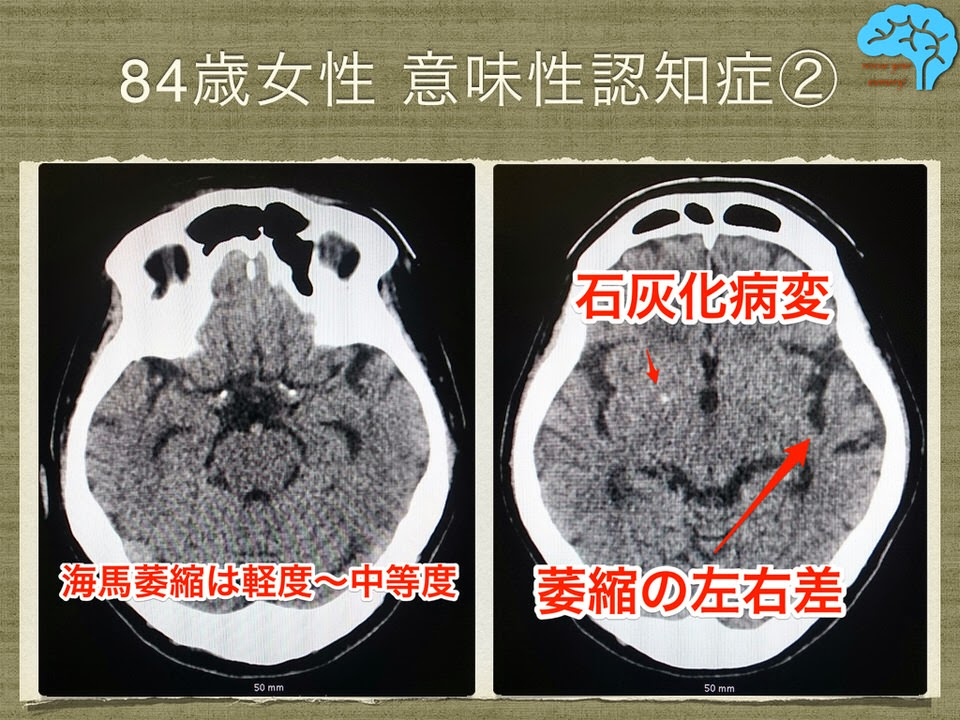 84歳女性、意味性認知症の頭部CT