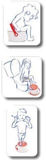 orinal infantil operació bolquer