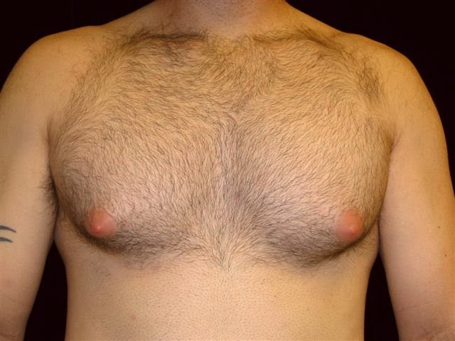Steroid induced gynecomastia
