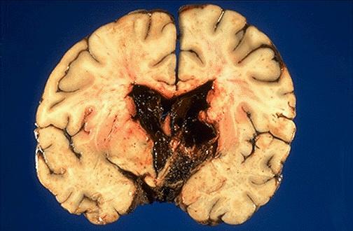 менингиома головного мозга операция стоимость