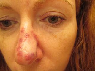 bouton douloureux dans le nez