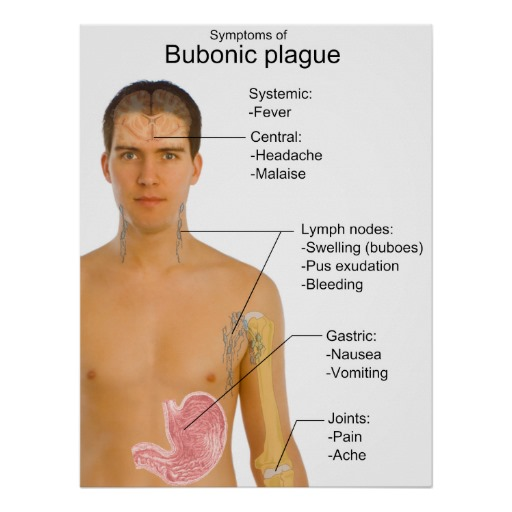 an analysis of the bubonic plague disease The black death, also known as the great plague, the black plague, or the plague, was one of the most devastating pandemics in human history, resulting in the deaths of an estimated 75 to 200 million people in eurasia and peaking in europe from 1347 to 1351.