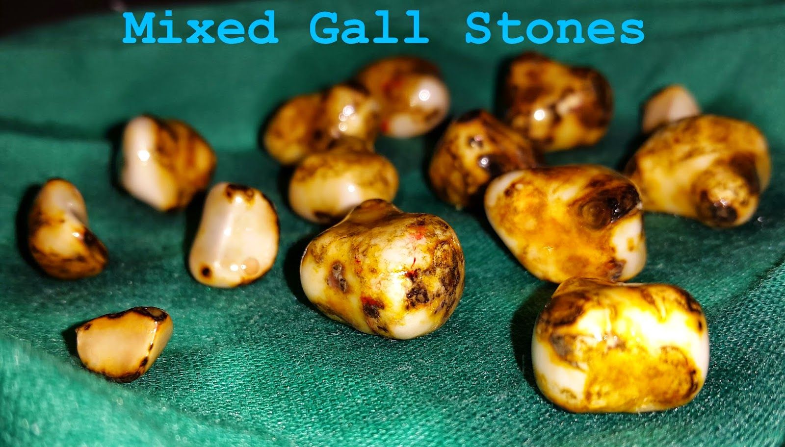 Mixed Gall Stones Pic 4